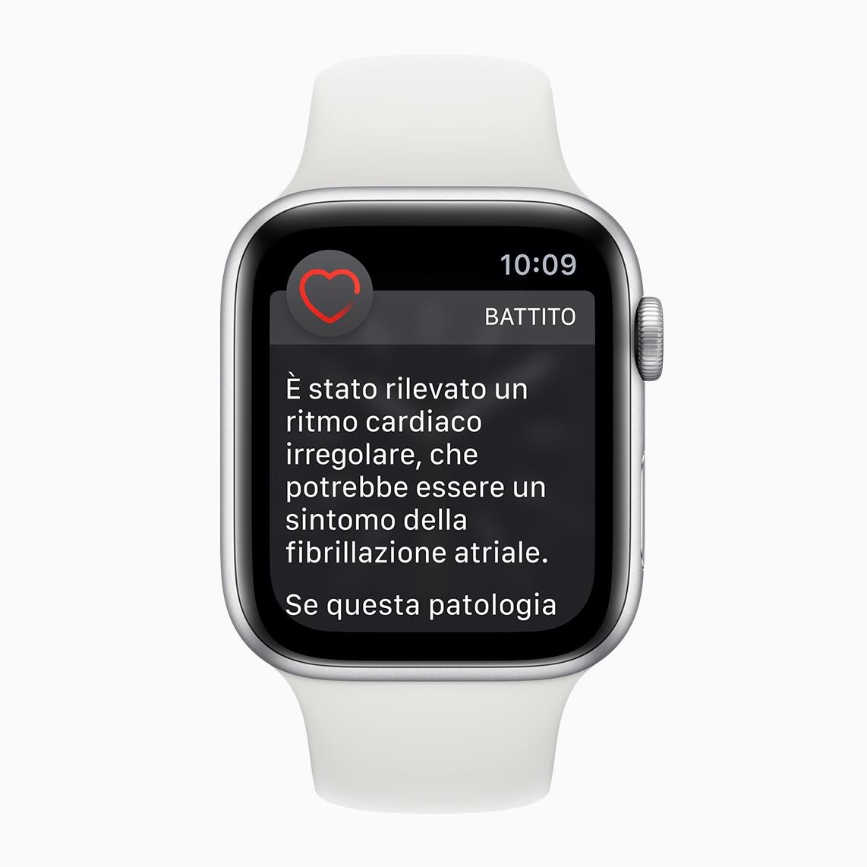 Apple Watch: Η λειτουργία ECG ήρθε επίσημα και στην Ελλάδα